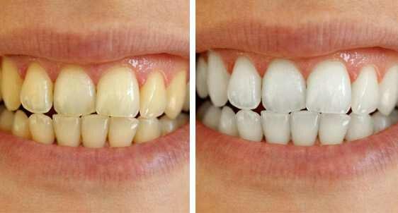 Blanchiment dentaire en Tunisie