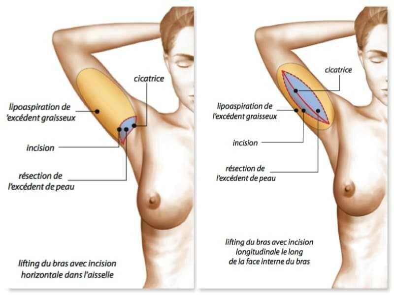 Lifting-des-Bras-cicatrice